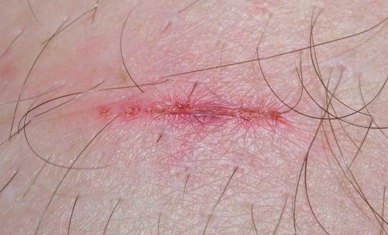 """Narbenentstören, Neuraltherapie, Narbe, (hier bitte """"TCM u traditionell chinesische Medizin"""" weglassen"""